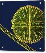 Green Algae, Light Micrograph Acrylic Print by Science Photo Library