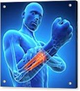 Human Arm Pain Acrylic Print