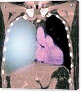 Pleural Effusion In Mesothelioma Acrylic Print