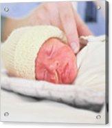 Premature Baby Acrylic Print