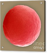 Red Blood Cell In Hypotonic Solution Acrylic Print