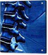 Thoracic Spine Acrylic Print