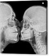 X-ray Kissing Acrylic Print