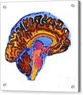 Normal Human Brain, Mri Scan Acrylic Print