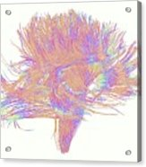 White Matter Fibres Of The Human Brain Acrylic Print