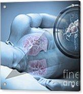 Bed Bugs And Sleeping Acrylic Print