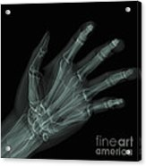 Bones Of The Hand Acrylic Print