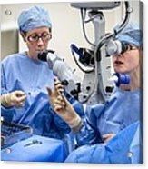 Cataract Eye Surgery Acrylic Print by Science Photo Library