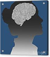 Cerebral Activity In Woman Acrylic Print