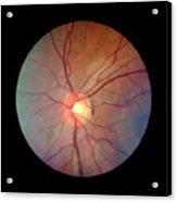 Fundus Camera Image Of A Normal Retina Acrylic Print