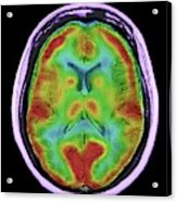 Normal Brain Blood Flow Acrylic Print