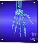 X-ray View Of Human Hand Acrylic Print