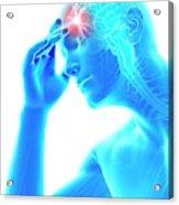 Human Headache Acrylic Print