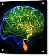 Brain Blood Vessels Acrylic Print