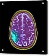 Meningioma Tumour Acrylic Print