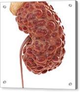 Polycystic Kidney Acrylic Print