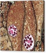 Chlamydia Infection Tem Acrylic Print