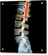 Pinned Spinal Fracture Acrylic Print