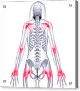 Joint Pain Acrylic Print