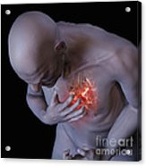 Heart Attack Acrylic Print