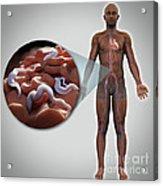 Sleeping Sickness Infection Acrylic Print