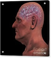 Geriatric Brain Acrylic Print