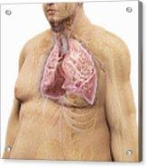 Obesity Acrylic Print