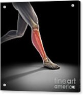 Medial Tibial Stress Syndrome Acrylic Print
