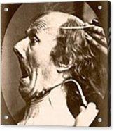 Duchenne's Physiognomy Studies, 1860s Acrylic Print