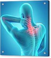 Human Neck Pain Acrylic Print