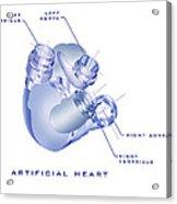 Artificial Heart Acrylic Print