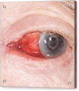Bleeding Eye Acrylic Print