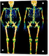 Bone Densitometry Scans Of The Skeletons Of Twins Acrylic Print