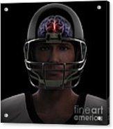 Brain Injury Acrylic Print