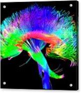 Brain Pathways Acrylic Print