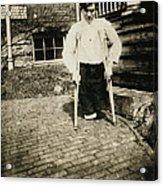 Child Labor, Frank, Whose Legs Were Cut Acrylic Print