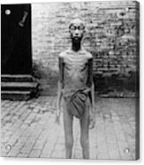 China Famine Victim Acrylic Print