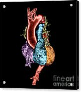 Color Enhanced 3d Ct Of Heart Acrylic Print