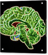 Coloured Ct Scan Of A Healthy Brain (side View) Acrylic Print