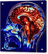 Coloured Mri Scan Of Brain In Sagittal Se Acrylic Print