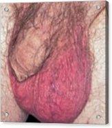 Epididymo-orchitis From Self Catheterisation Acrylic Print