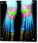 Foot X-ray Acrylic Print