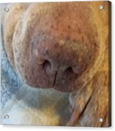 Freckled Nose Acrylic Print