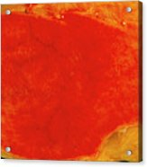 Gallbladder Inflammation Acrylic Print