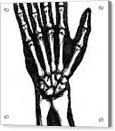 Hand Bones Acrylic Print