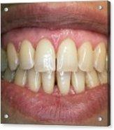 Healthy Adult Teeth Acrylic Print