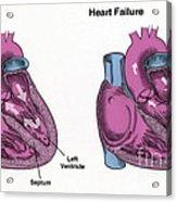 Healthy Heart Vs. Heart Failure Acrylic Print