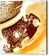 Horse Navicular Bone Pathology 30015 Acrylic Print