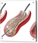 Insertion Of Stent Into Atherosclerotic Acrylic Print