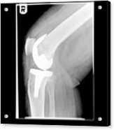 Knee After Replacement Surgery Acrylic Print